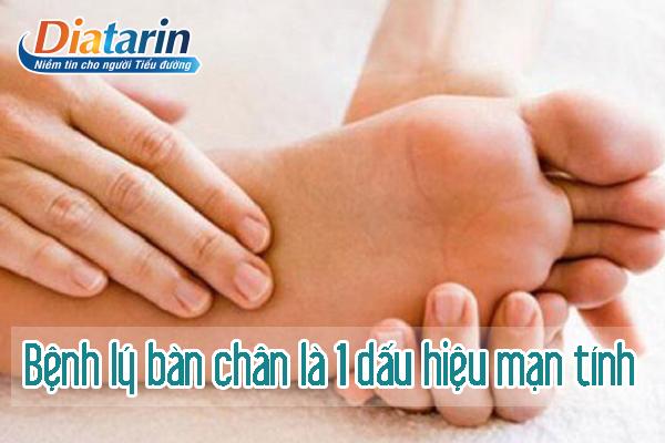 Bệnh lý bàn chân là một triệu chứng của tiểu đường mãn tính